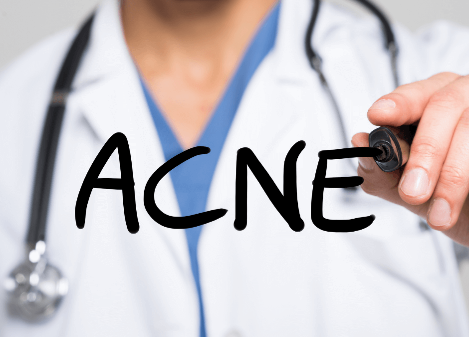 The Differences Between Adult and TeenAcne